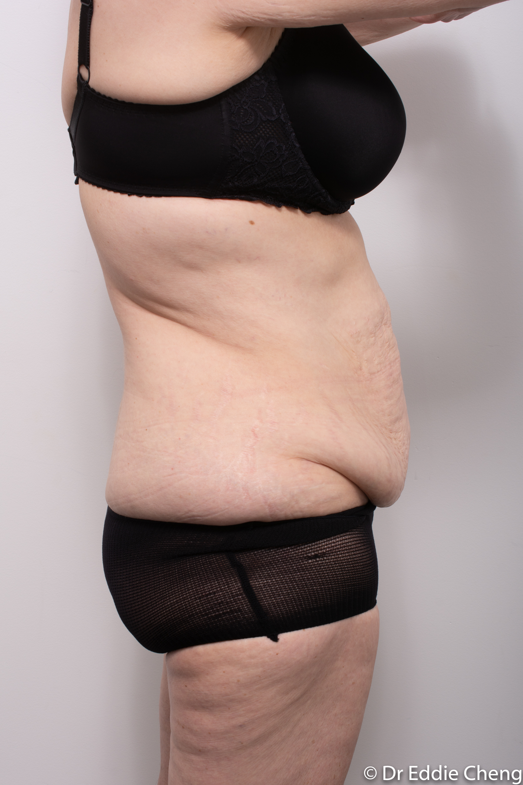 Body lift circumferential dr eddie cheng brisbane surgeon pre and post operative images -1