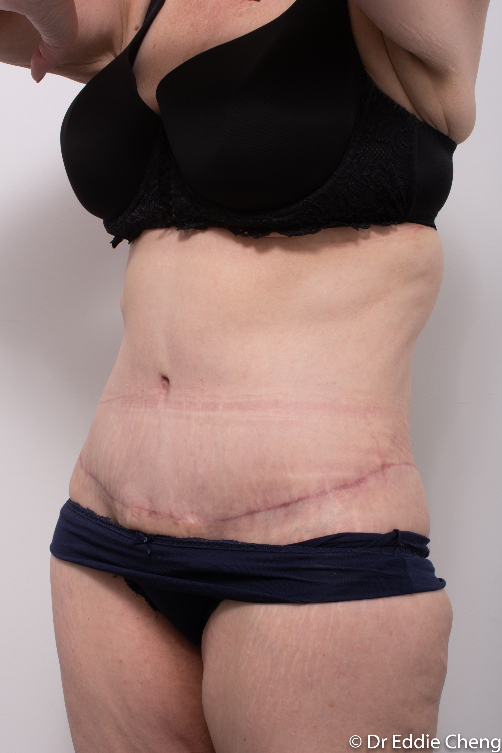Body lift circumferential dr eddie cheng brisbane surgeon pre and post operative images -2-2