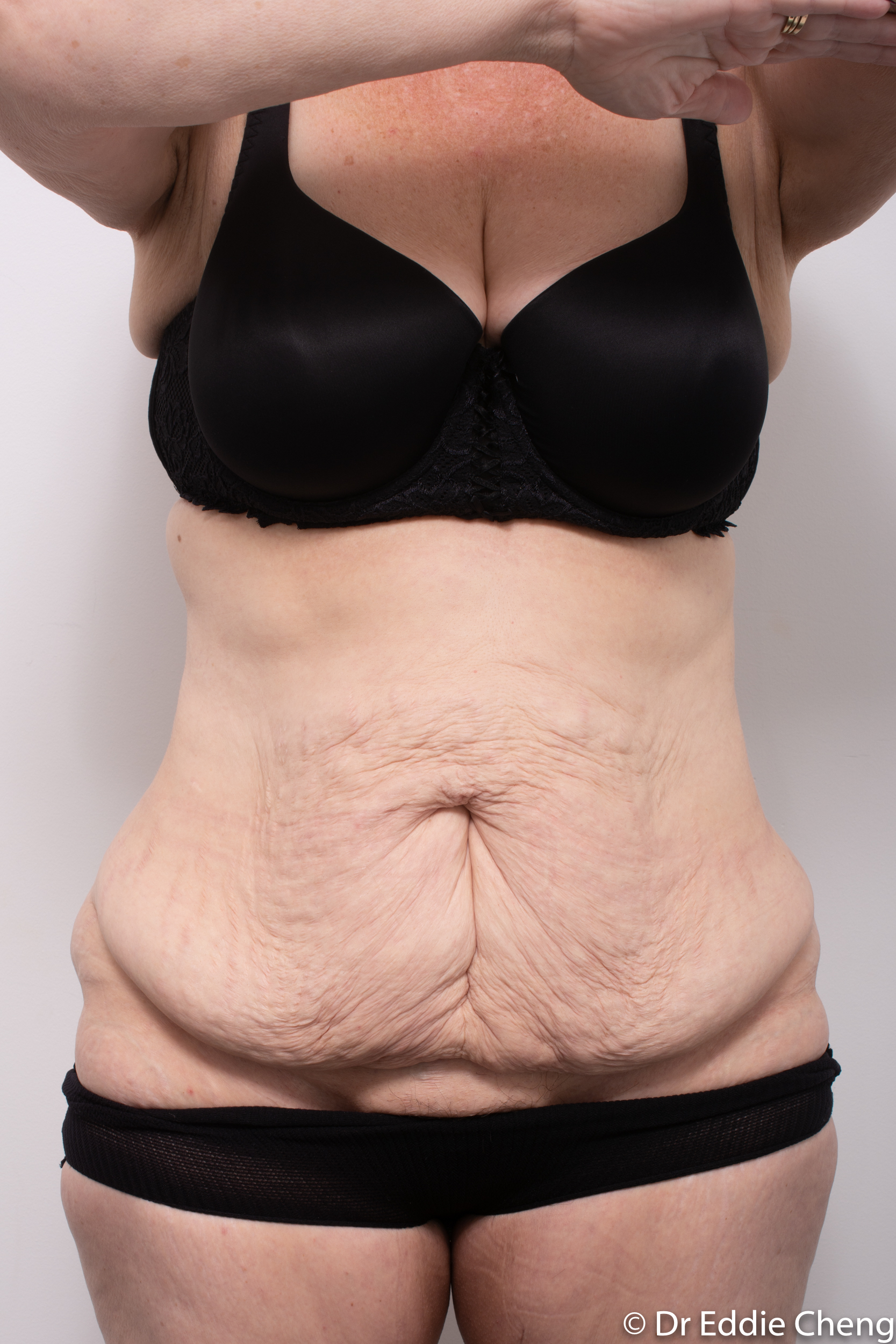 Body lift circumferential dr eddie cheng brisbane surgeon pre and post operative images -3