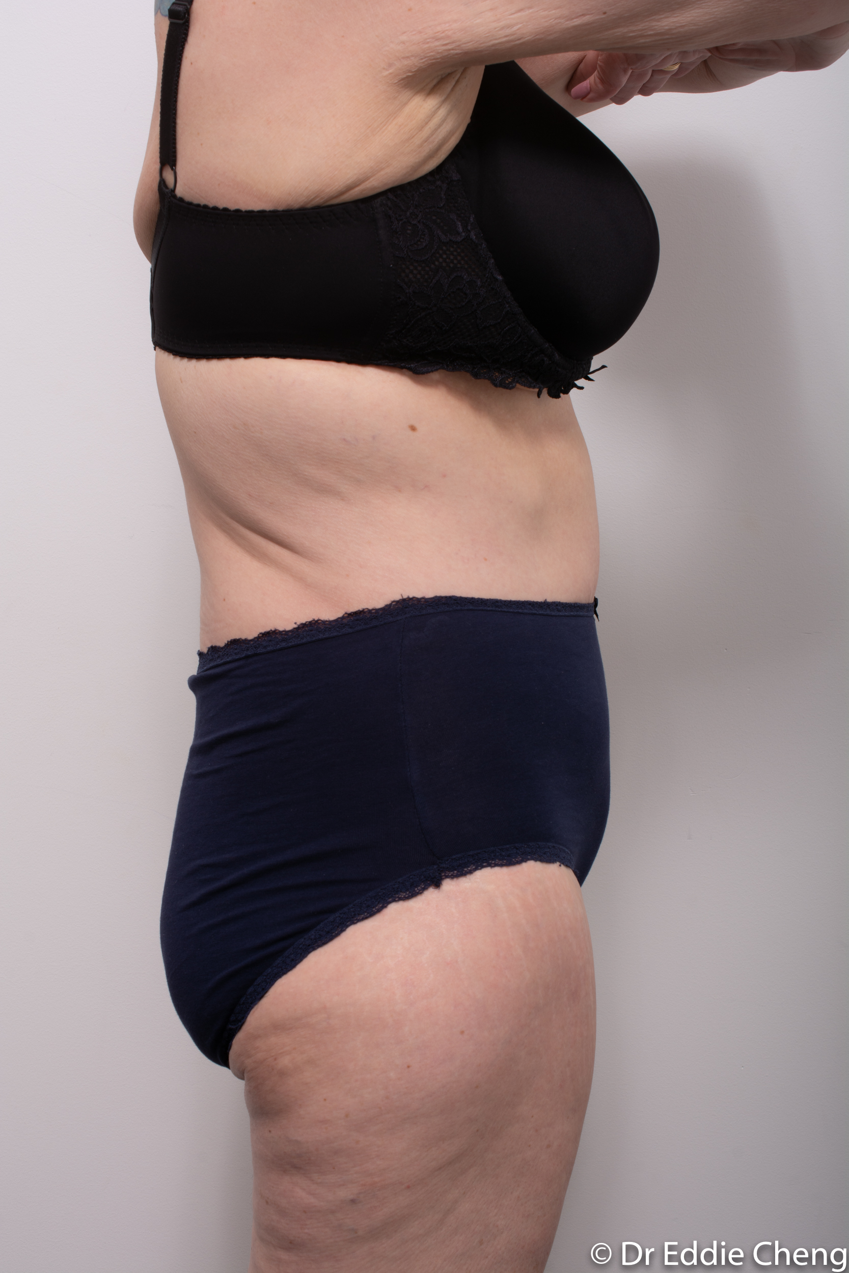 Body lift circumferential dr eddie cheng brisbane surgeon pre and post operative images -8