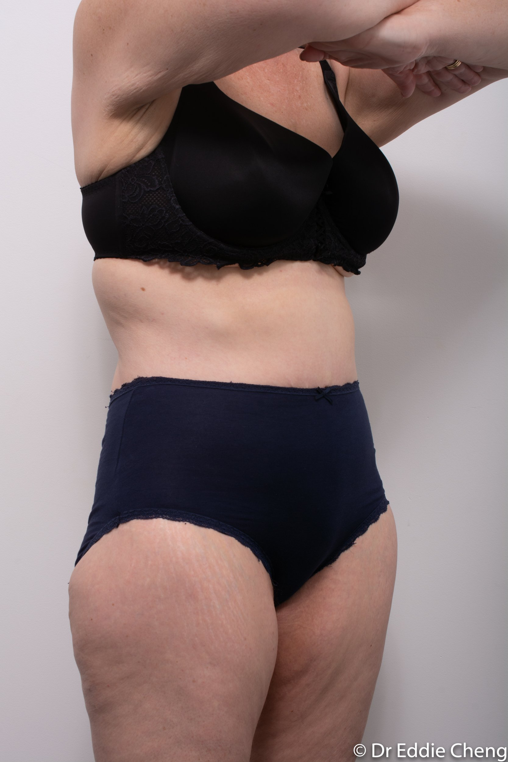 Body lift circumferential dr eddie cheng brisbane surgeon pre and post operative images -9