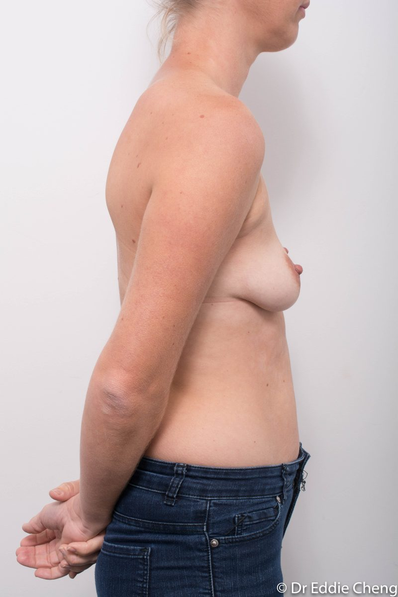 Breast-Augmentation-Post-Op-12-months-Accessory-breast-tissue-400cc-1-800x1200