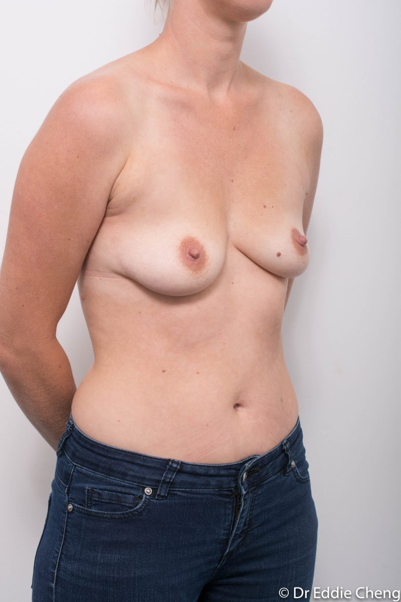 Breast-Augmentation-Post-Op-12-months-Accessory-breast-tissue-400cc-2-800x1200