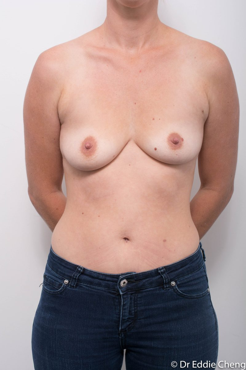 Breast-Augmentation-Post-Op-12-months-Accessory-breast-tissue-400cc-3-800x1200