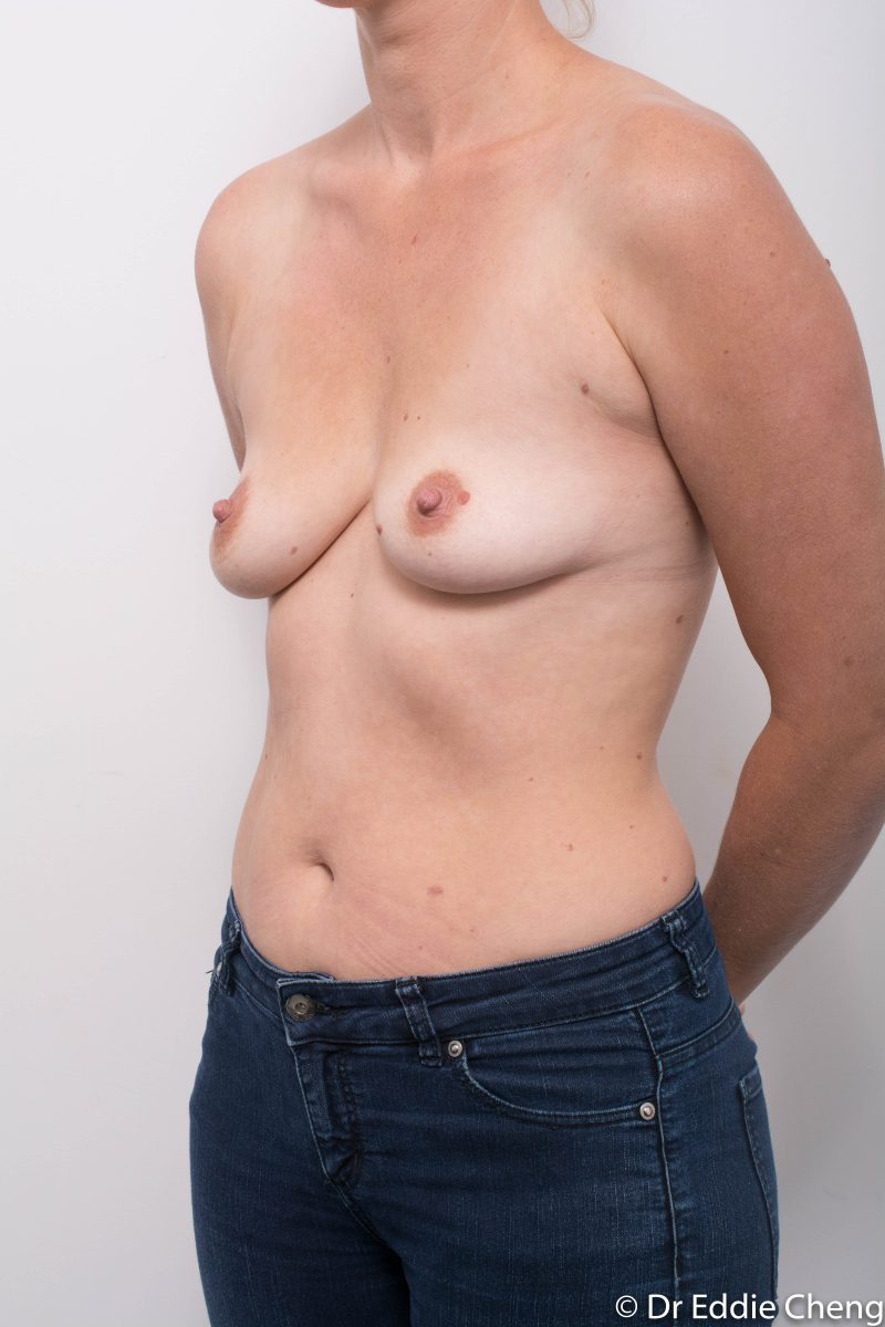 Breast-Augmentation-Post-Op-12-months-Accessory-breast-tissue-400cc-4-800x1200