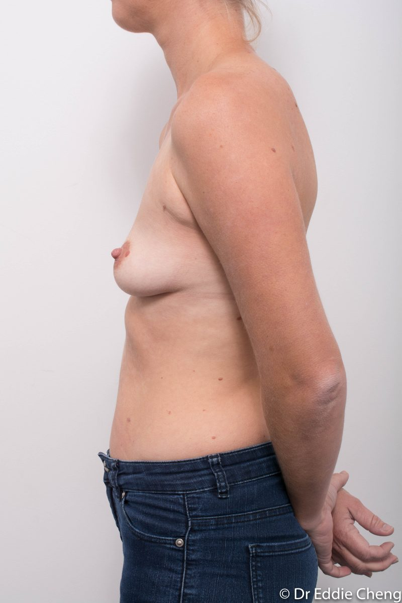 Breast-Augmentation-Post-Op-12-months-Accessory-breast-tissue-400cc-5-800x1200