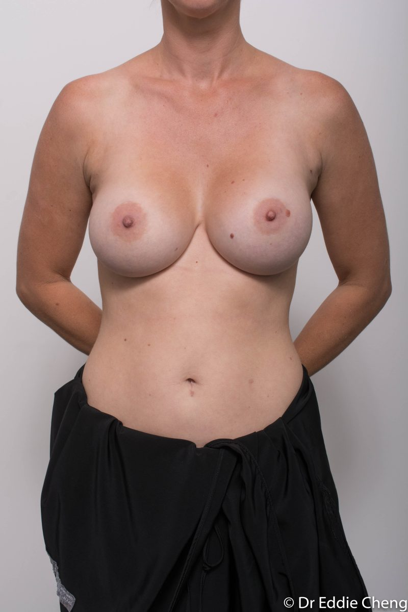 Breast-Augmentation-Post-Op-12-months-Accessory-breast-tissue-400cc-6-800x1200