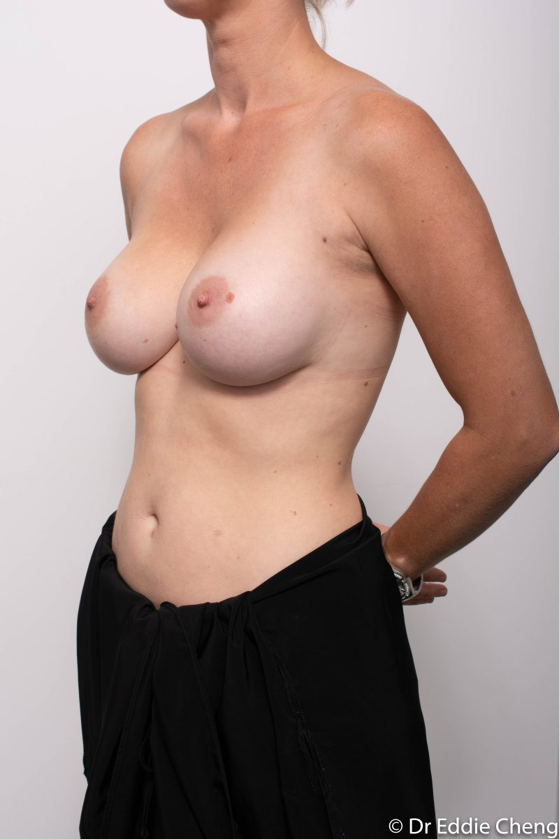 Breast-Augmentation-Post-Op-12-months-Accessory-breast-tissue-400cc-7-800x1200