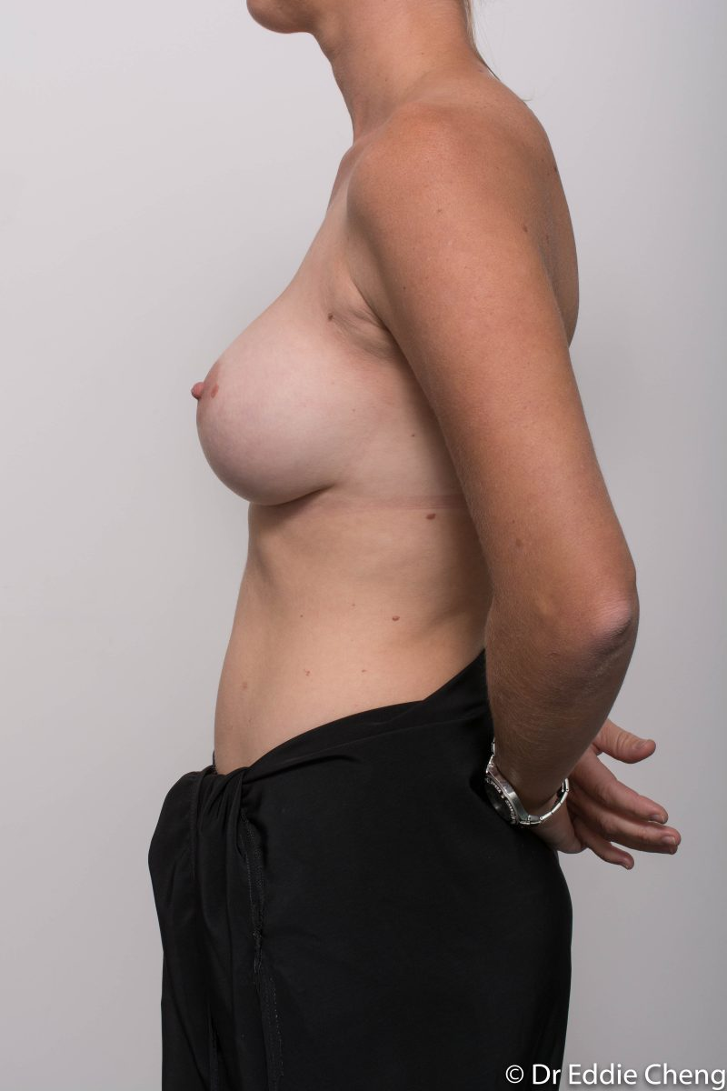 Breast-Augmentation-Post-Op-12-months-Accessory-breast-tissue-400cc-8-800x1200