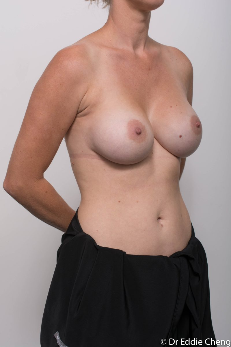 Breast-Augmentation-Post-Op-12-months-Accessory-breast-tissue-400cc-9-800x1200
