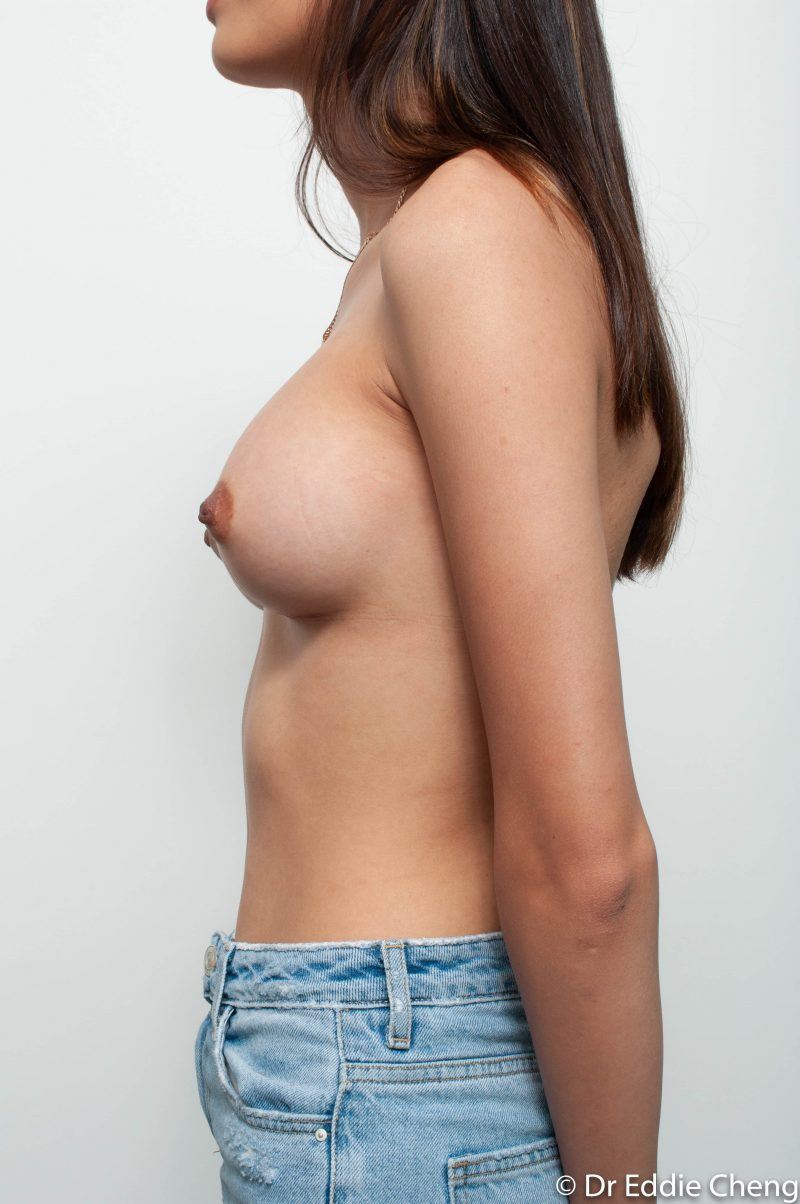 Breast-Augmentation-Post-Op-375cc-10-800x1204