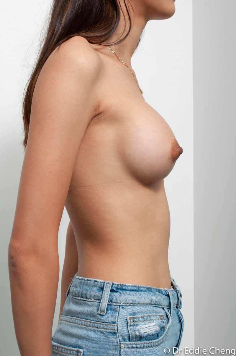 Breast-Augmentation-Post-Op-375cc-6-800x1204