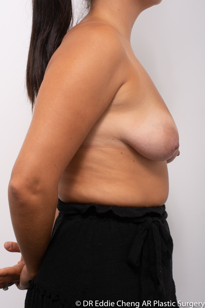 Breast-Reduction-PRE-OP-Dr_Eddie_Cheng_Specialist_Plastic_Surgeon_Brisbane-001