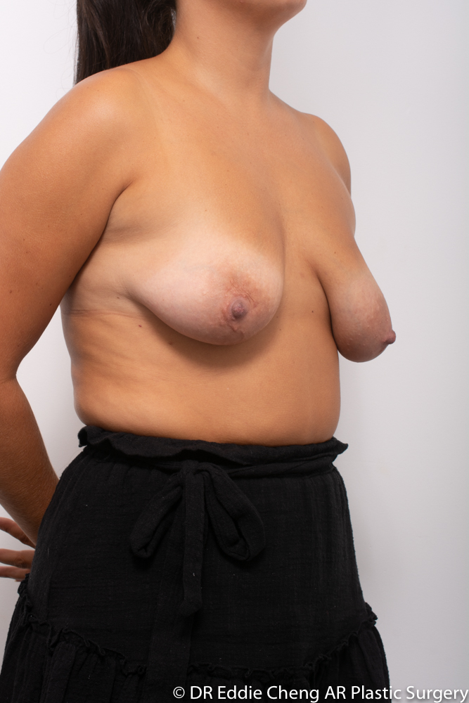 Breast-Reduction-PRE-OP-Dr_Eddie_Cheng_Specialist_Plastic_Surgeon_Brisbane-002