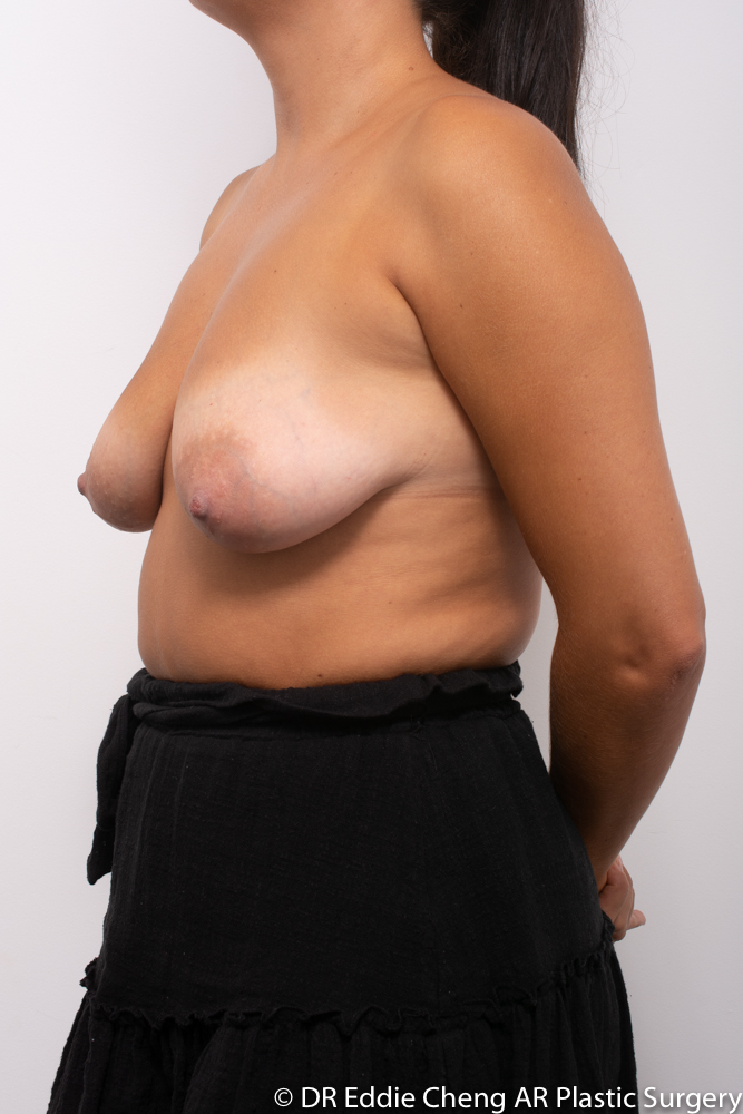 Breast-Reduction-PRE-OP-Dr_Eddie_Cheng_Specialist_Plastic_Surgeon_Brisbane-004