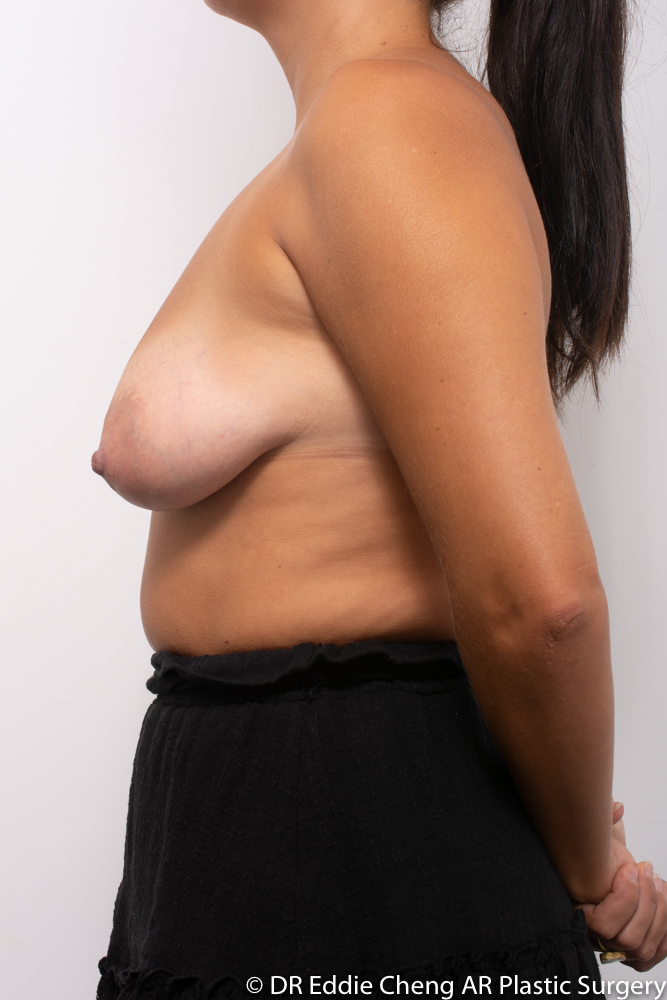 Breast-Reduction-PRE-OP-Dr_Eddie_Cheng_Specialist_Plastic_Surgeon_Brisbane-005
