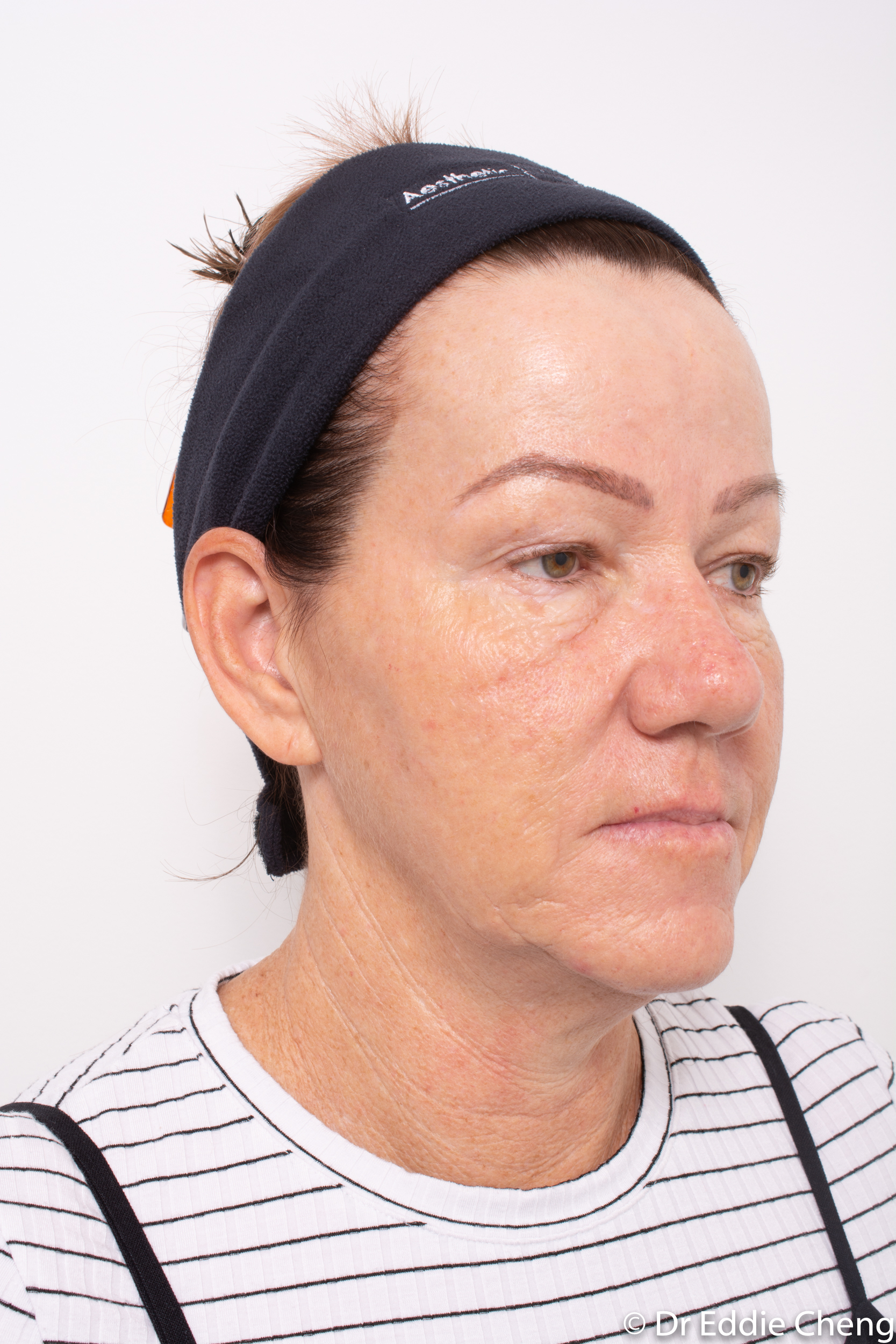 Brow lift dr eddie cheng blepharoplasty pre and post operative brisbane surgeon -2-2