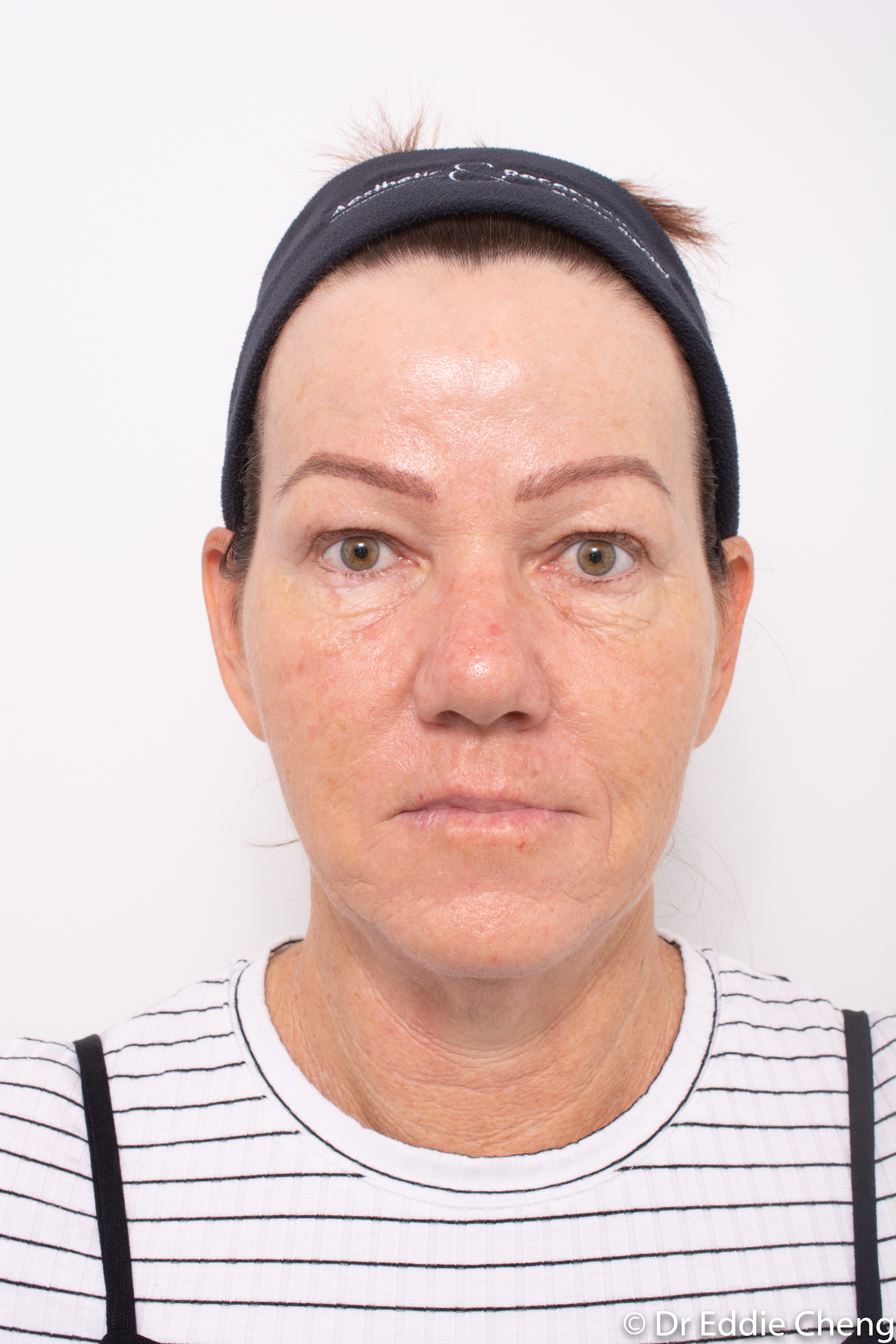 Brow lift dr eddie cheng blepharoplasty pre and post operative brisbane surgeon -3-2