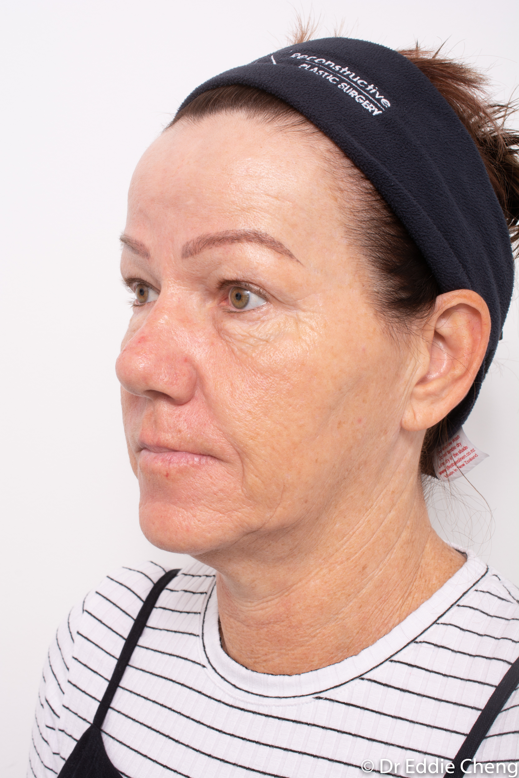 Brow lift dr eddie cheng blepharoplasty pre and post operative brisbane surgeon -4-2
