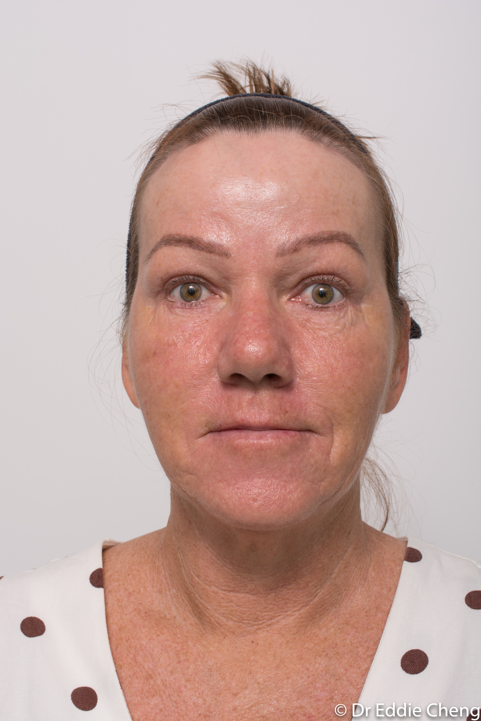 Brow lift dr eddie cheng blepharoplasty pre and post operative brisbane surgeon -6-2