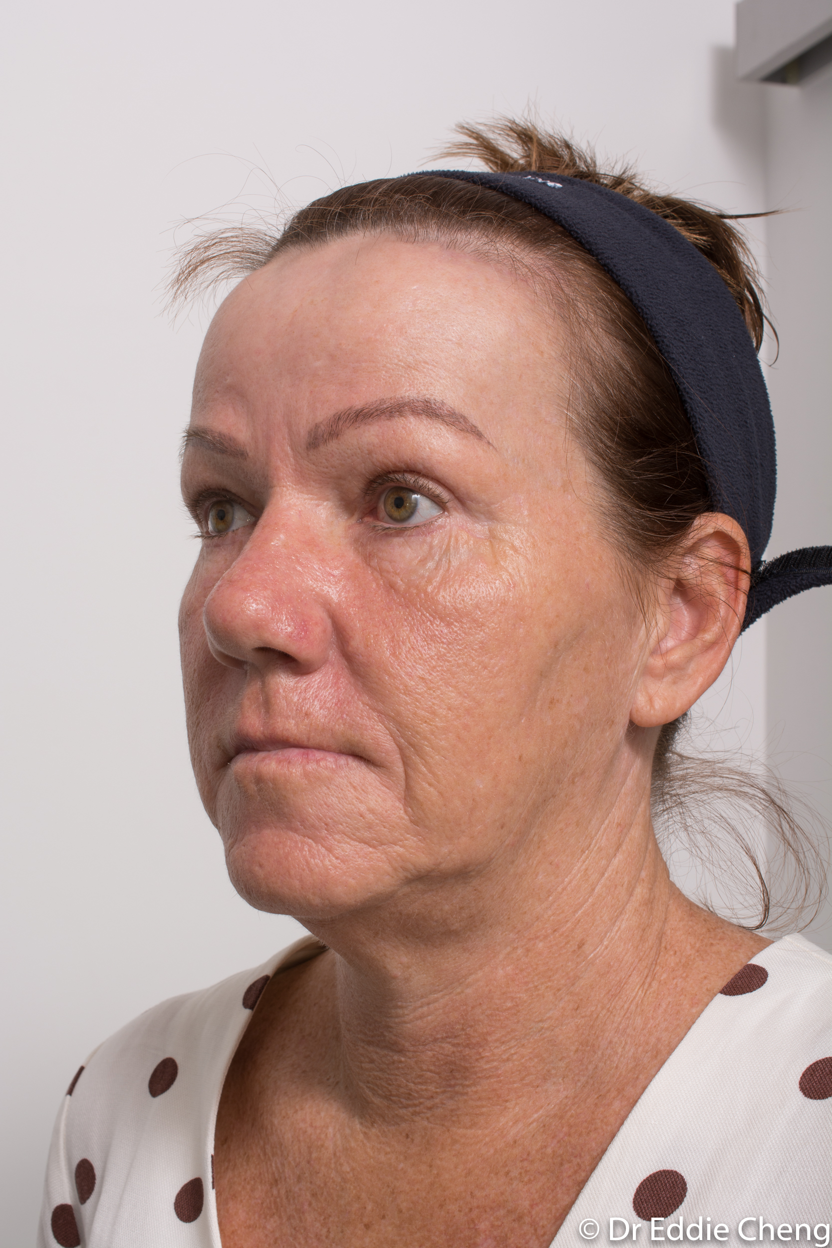 Brow lift dr eddie cheng blepharoplasty pre and post operative brisbane surgeon -7-2
