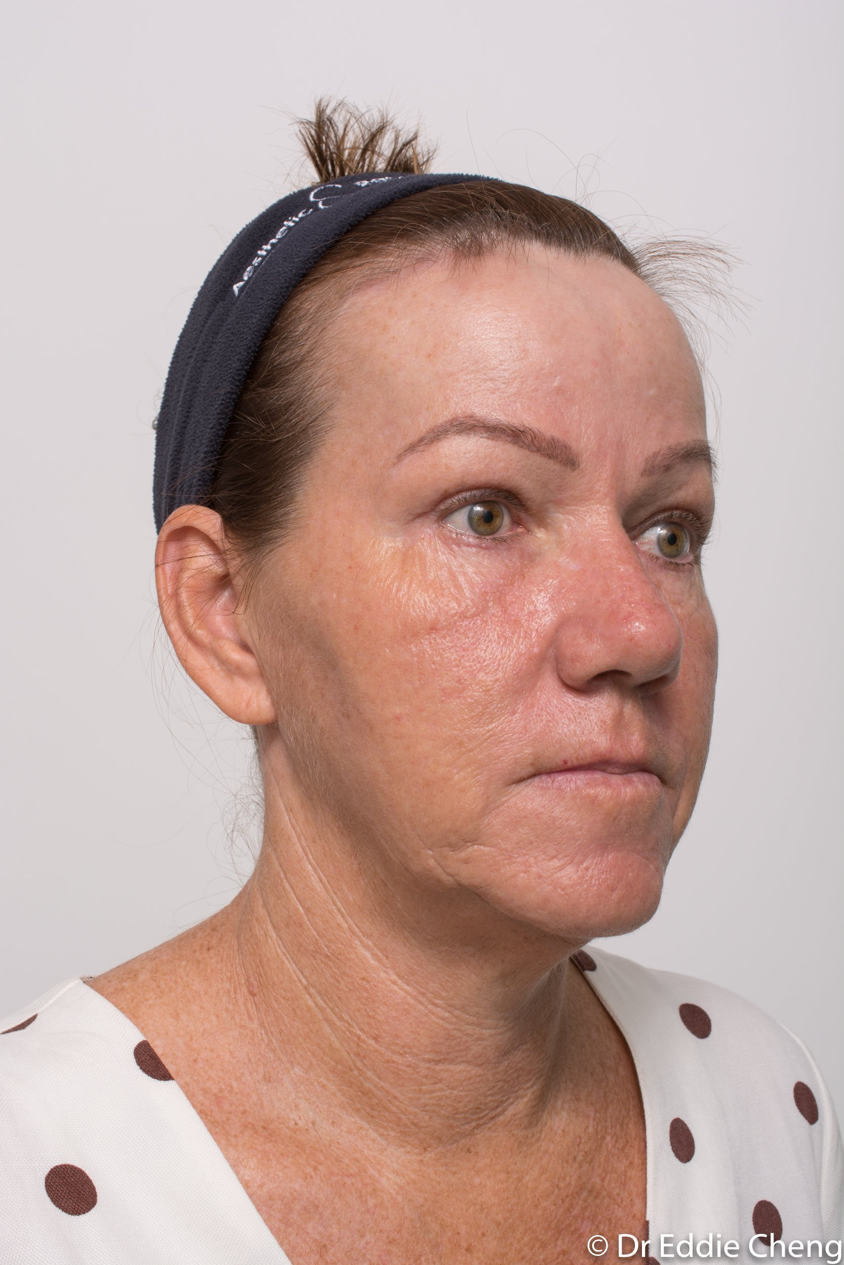 Brow lift dr eddie cheng blepharoplasty pre and post operative brisbane surgeon -9-2