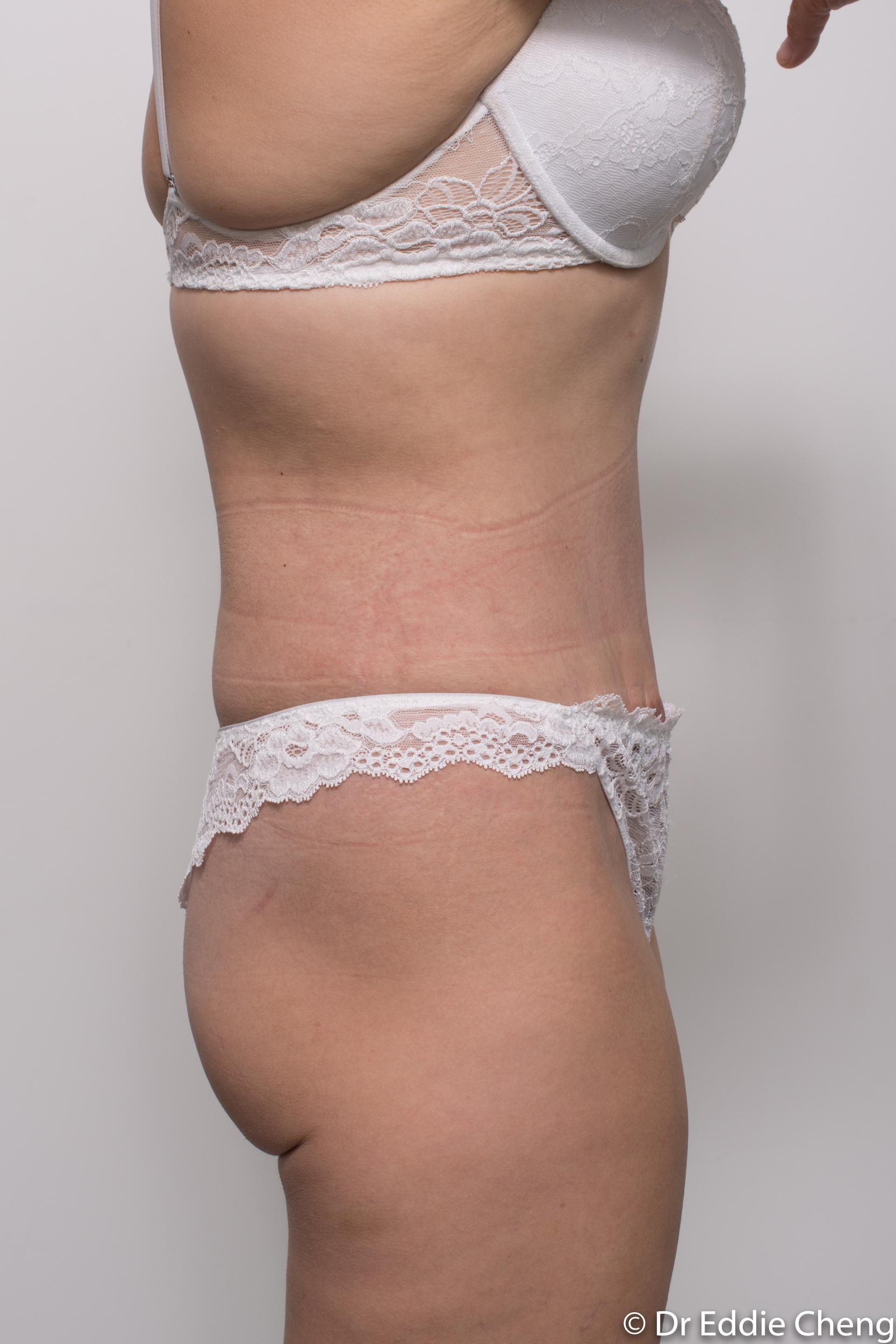 abdominoplasty liposuction dr eddie cheng brisbane-10