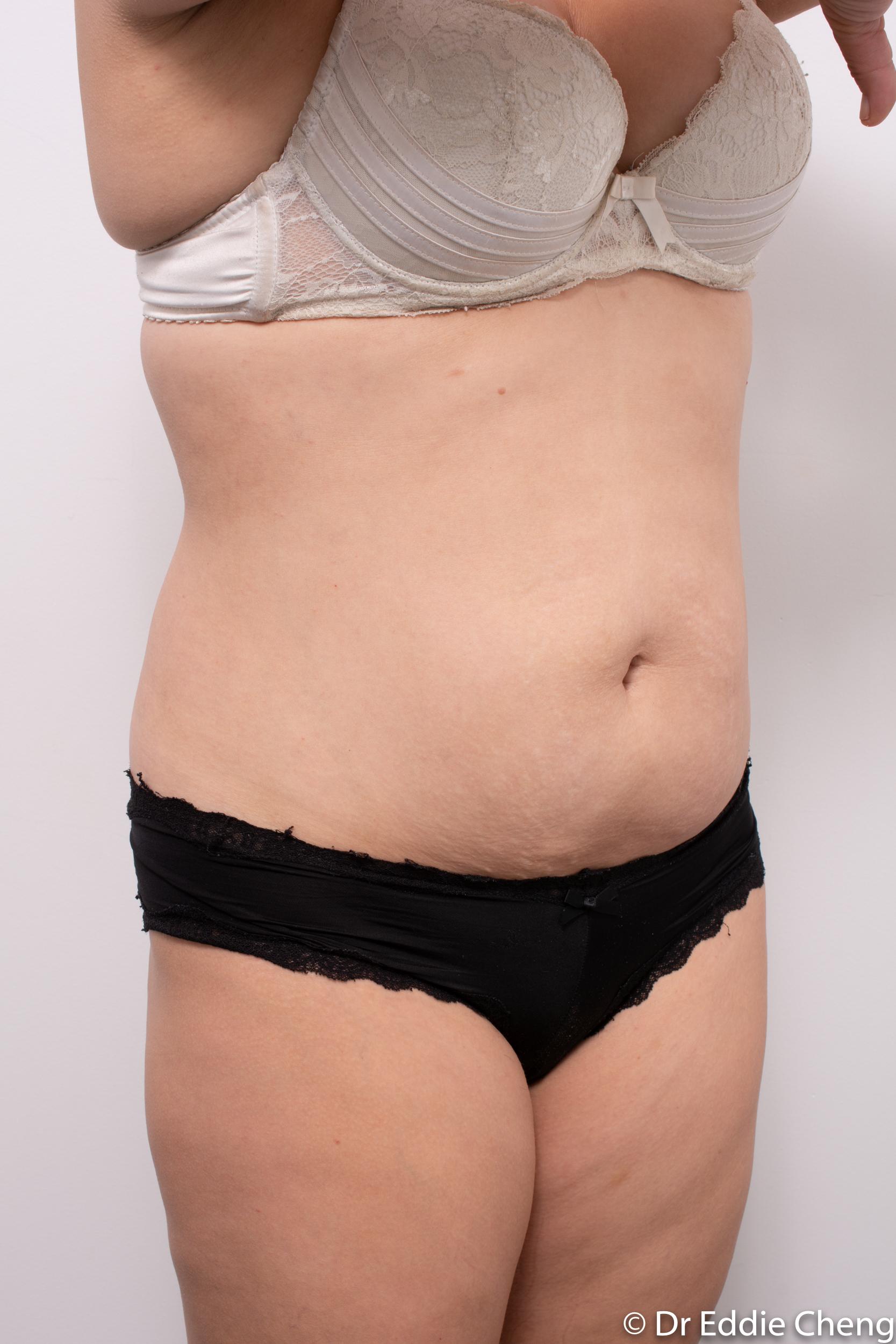 abdominoplasty liposuction dr eddie cheng brisbane-2