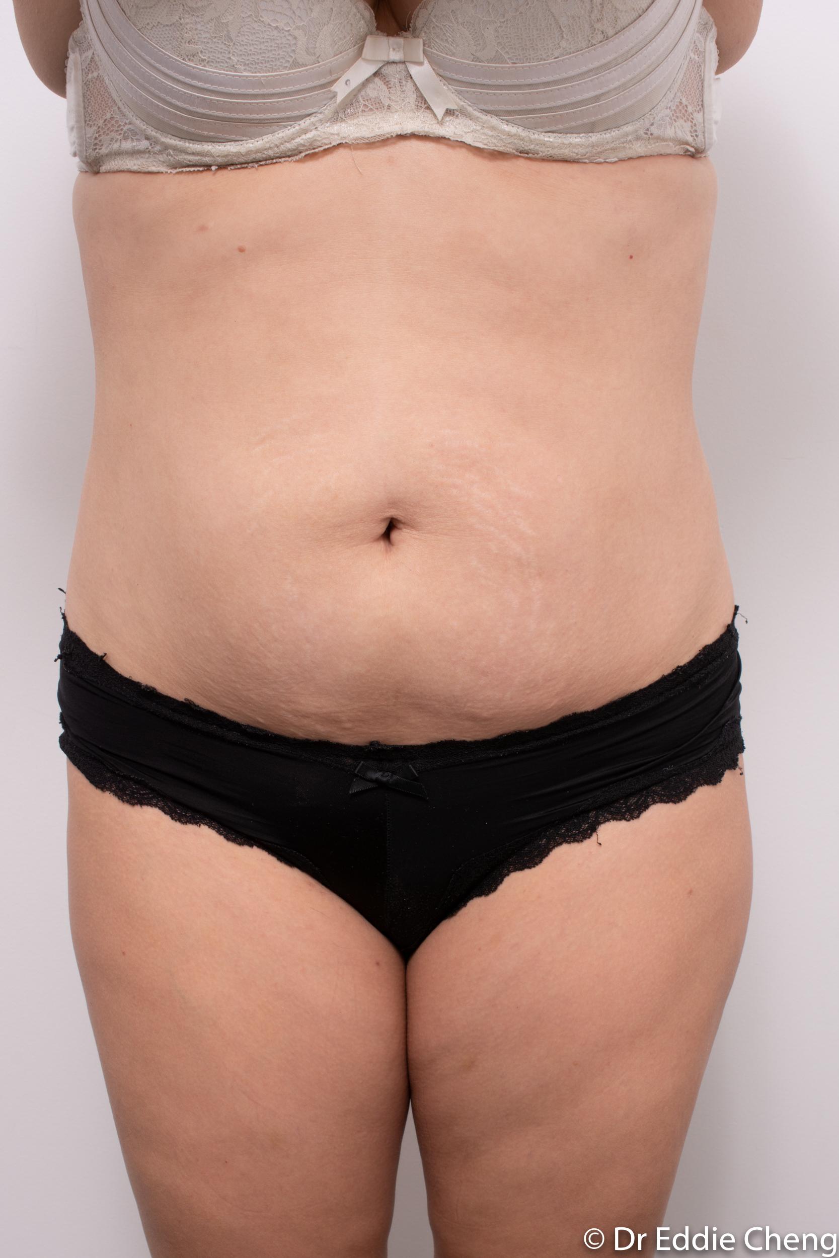 abdominoplasty liposuction dr eddie cheng brisbane-3