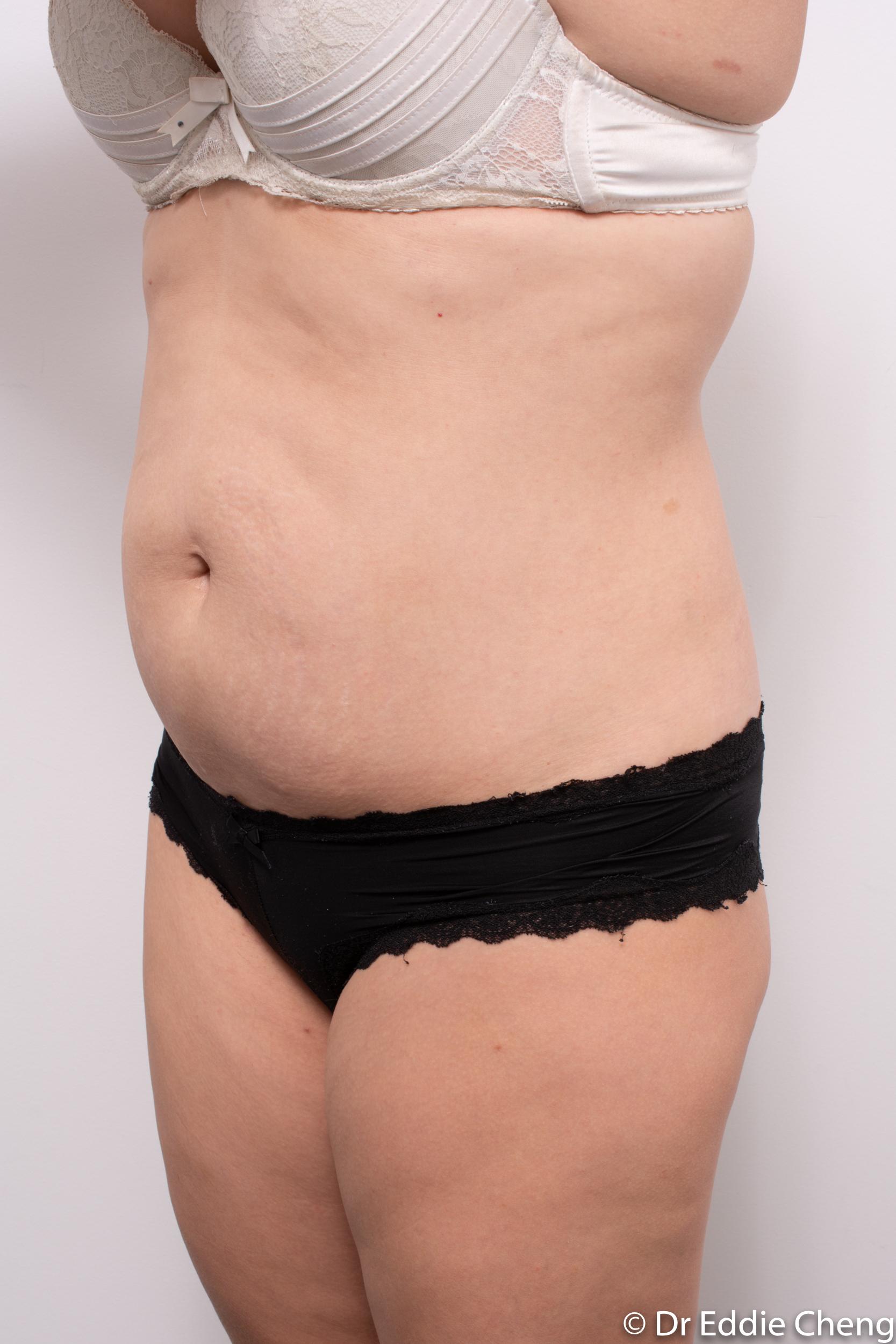 abdominoplasty liposuction dr eddie cheng brisbane-4