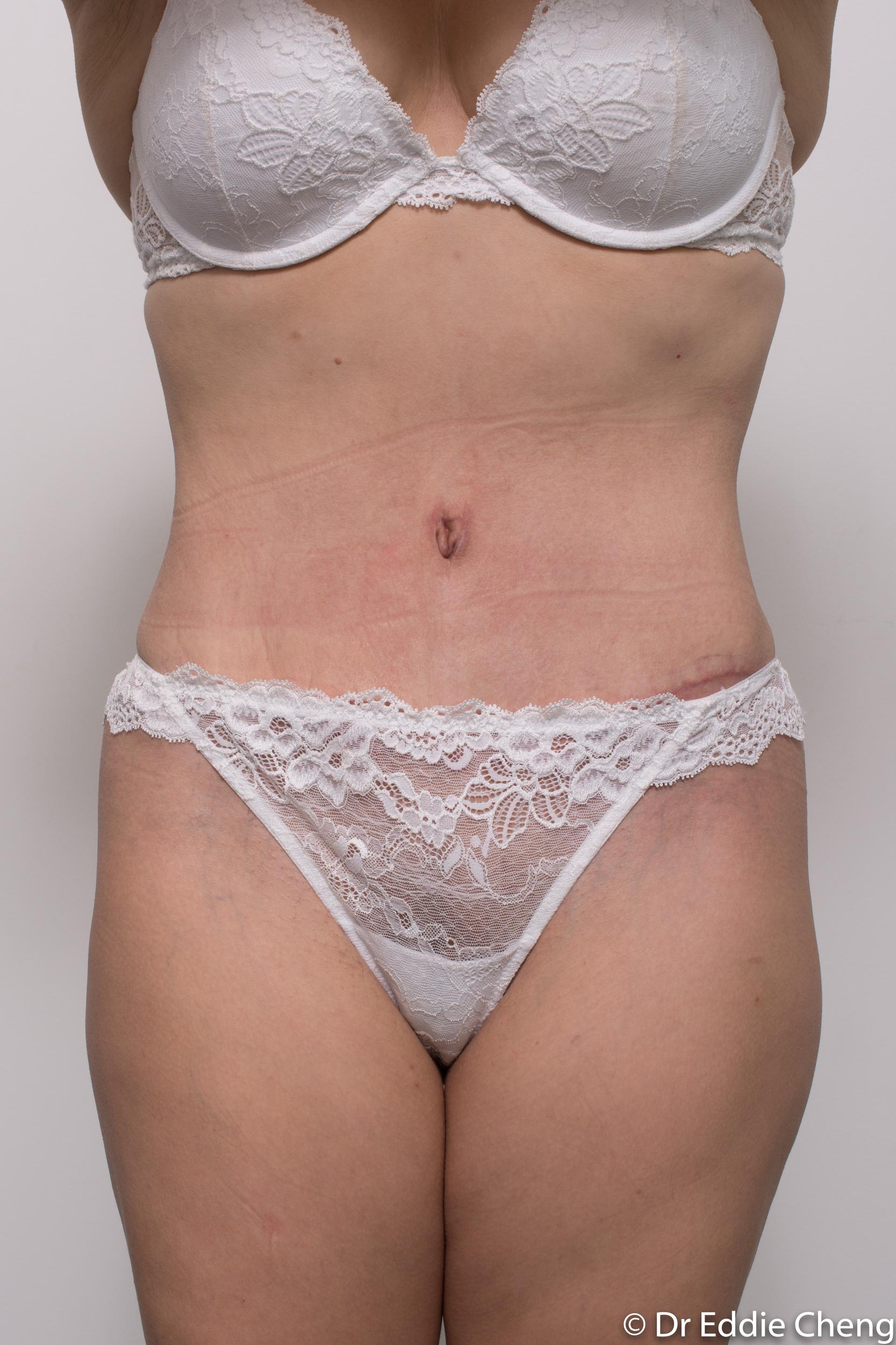 abdominoplasty liposuction dr eddie cheng brisbane-6