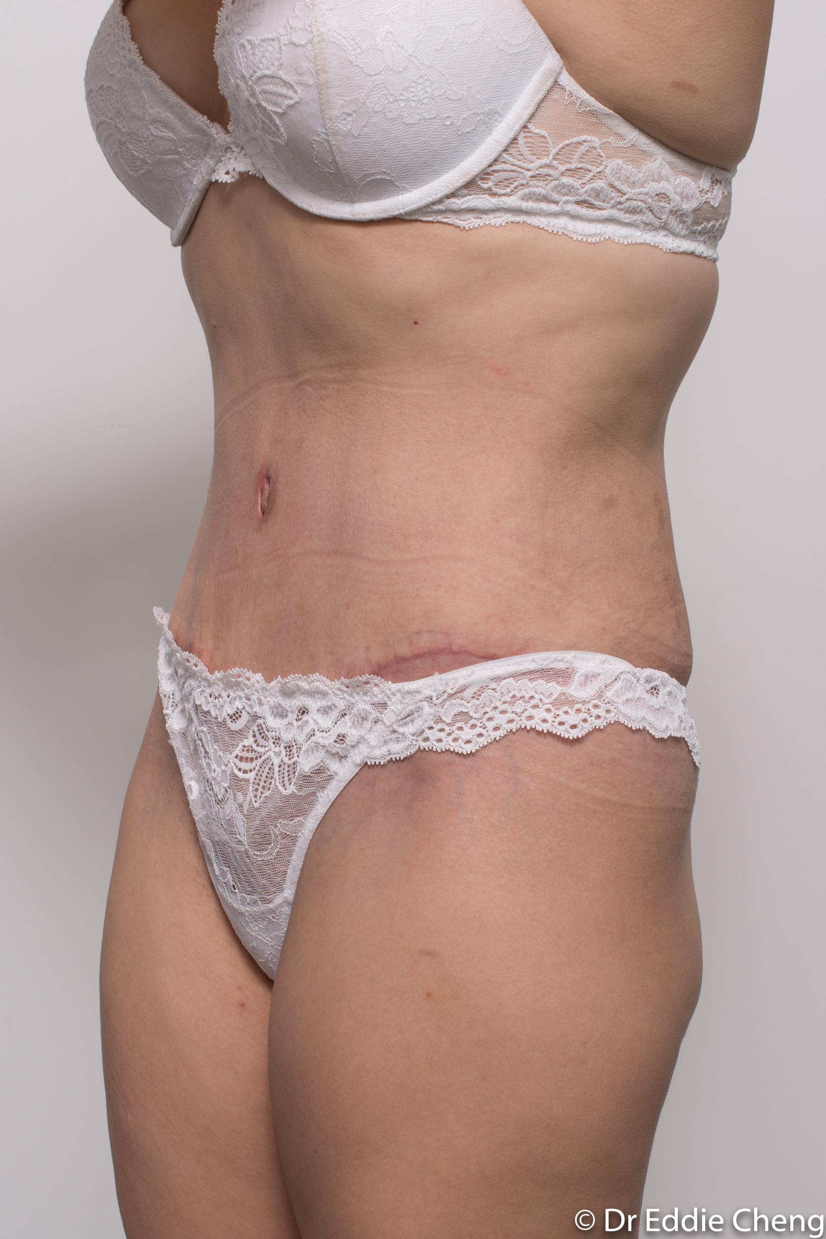 abdominoplasty liposuction dr eddie cheng brisbane-7
