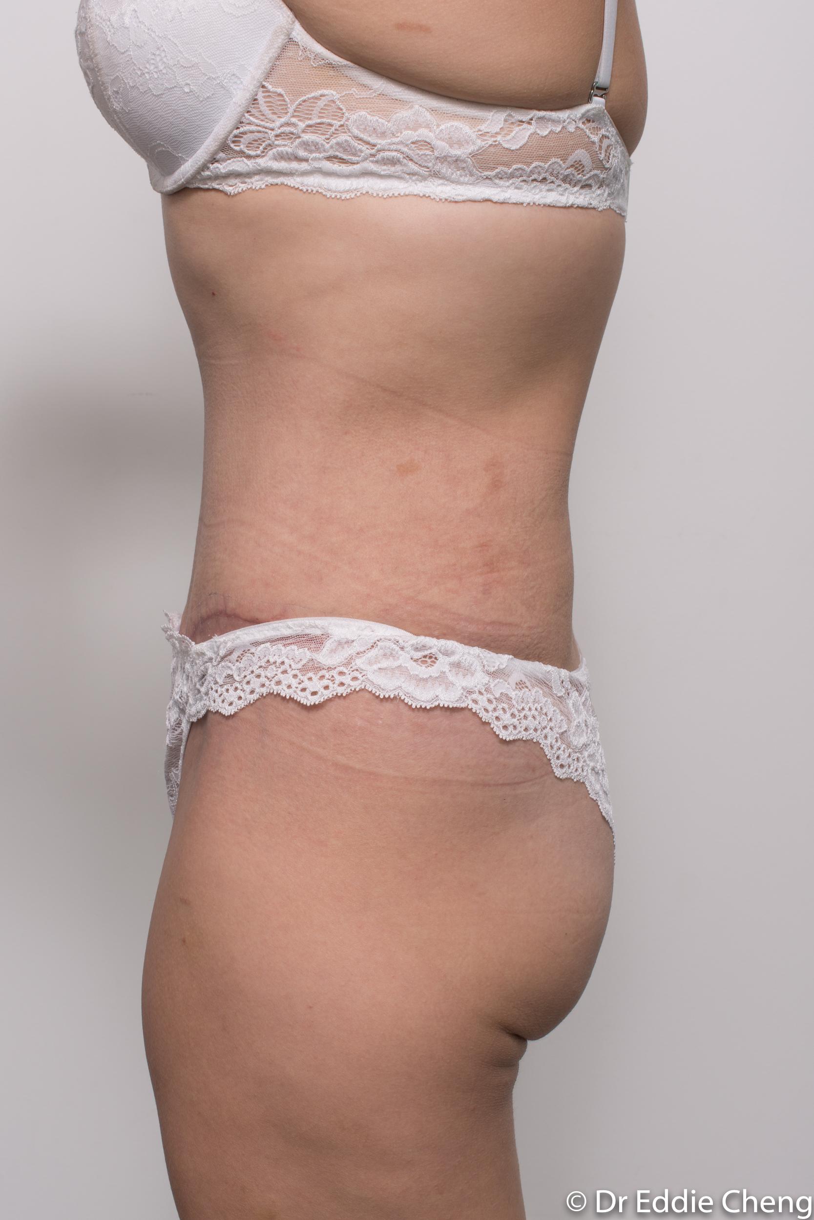 abdominoplasty liposuction dr eddie cheng brisbane-8