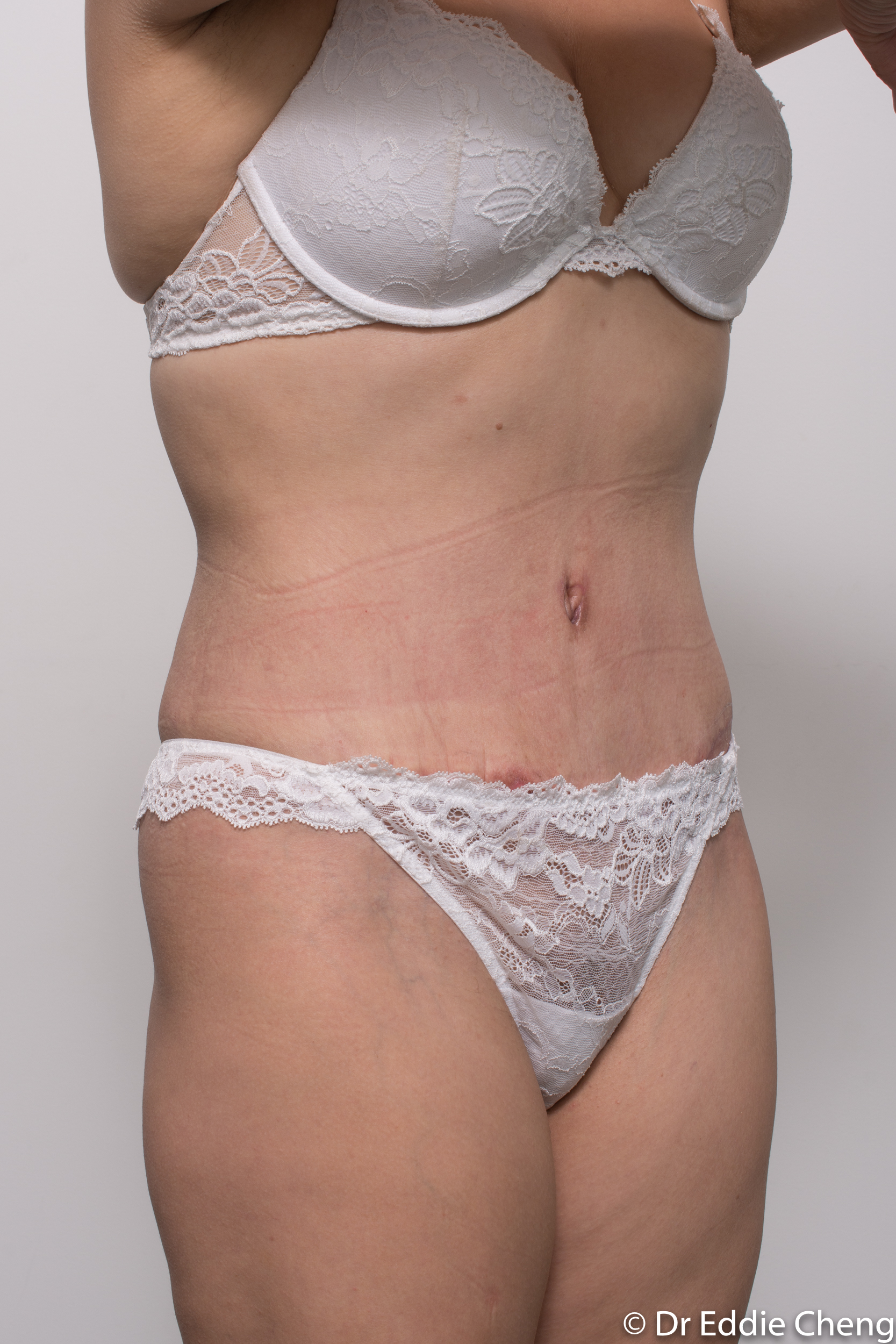 abdominoplasty liposuction dr eddie cheng brisbane-9