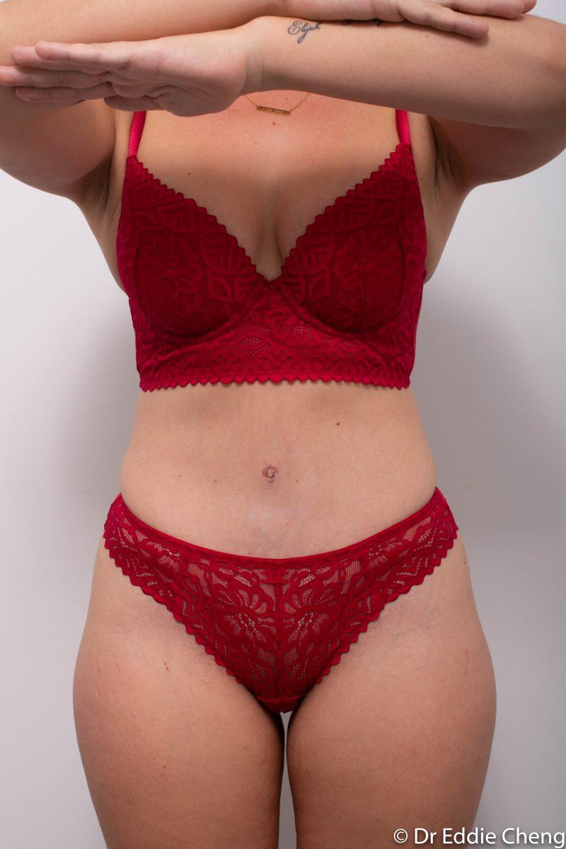 abdominoplasty-post-op-3-12-3-months-1-800x1200
