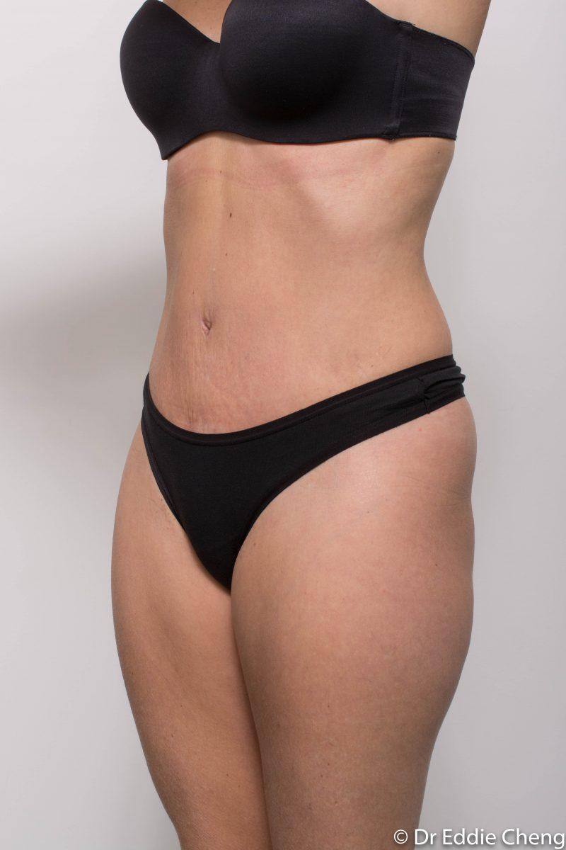 abdominoplasty-post-op-6-weeks-6-52-2-800x1200