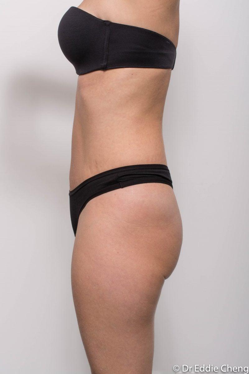 abdominoplasty-post-op-6-weeks-6-52-3-800x1200