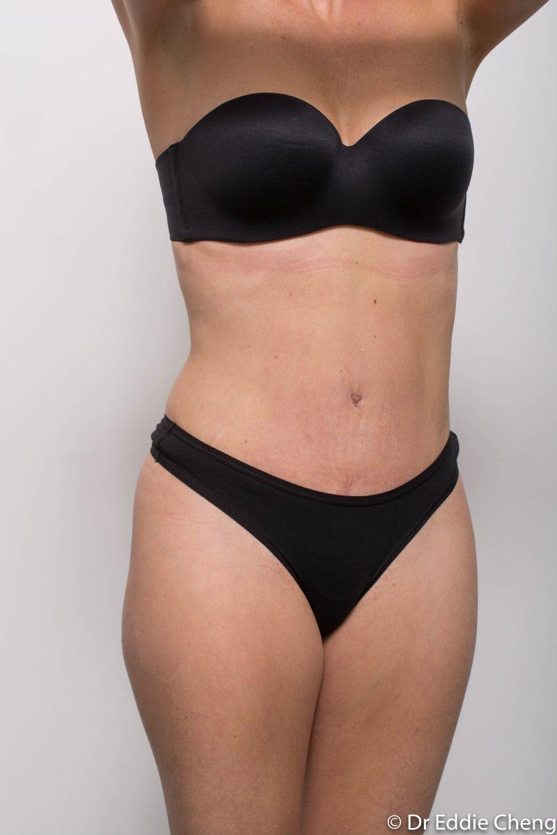abdominoplasty-post-op-6-weeks-6-52-4-800x1200