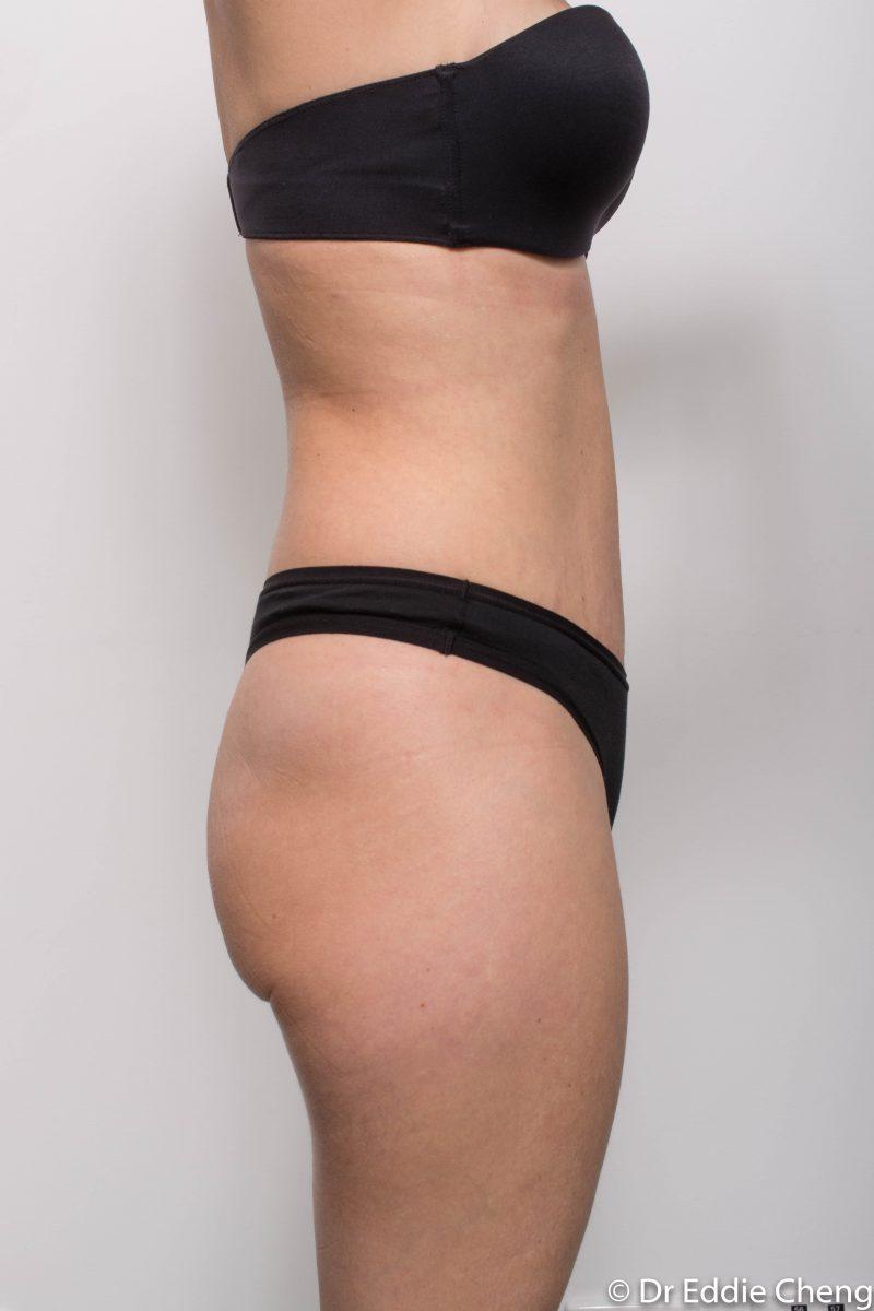 abdominoplasty-post-op-6-weeks-6-52-5-800x1200