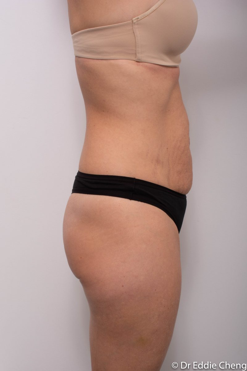 abdominoplasty-pre-op-tummy-tuck-1-800x1200
