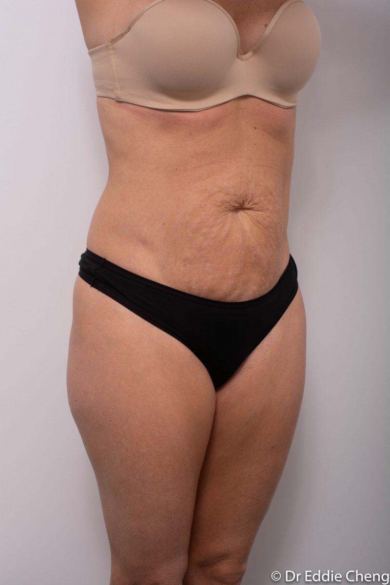 abdominoplasty-pre-op-tummy-tuck-2-800x1200