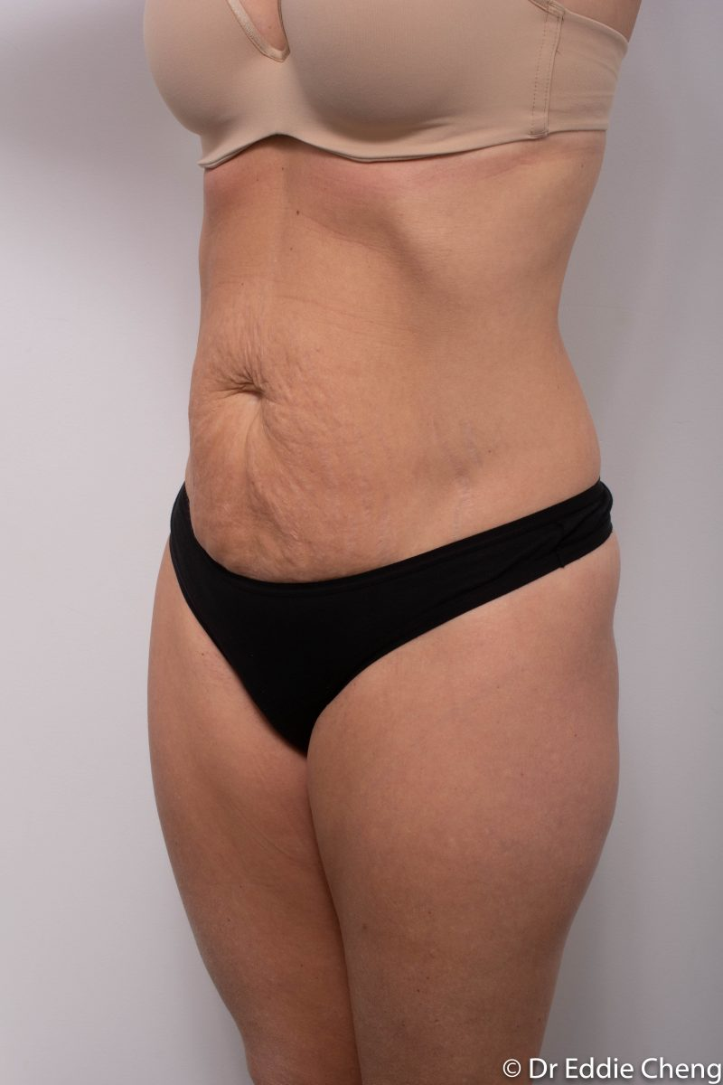 abdominoplasty-pre-op-tummy-tuck-4-800x1200
