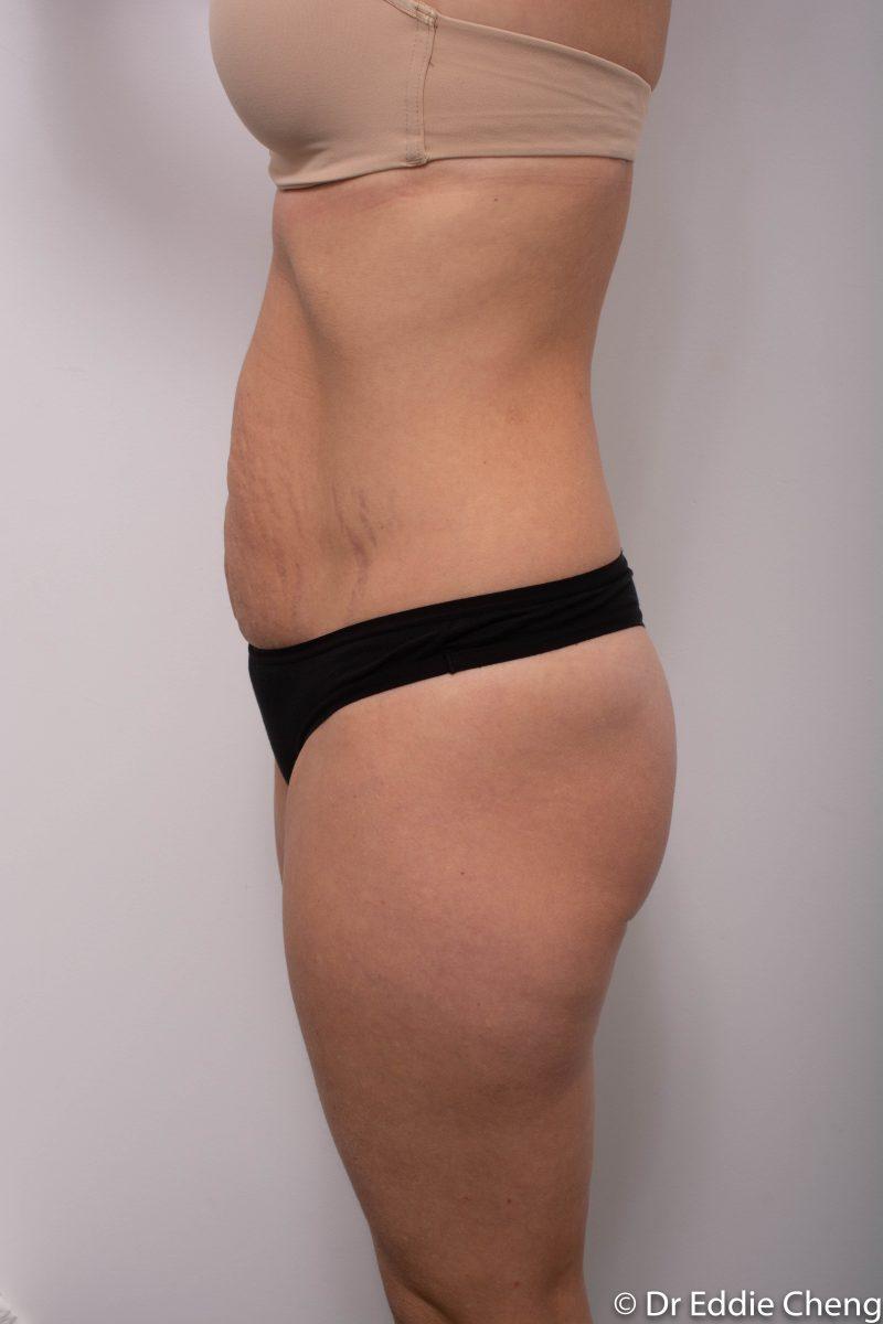 abdominoplasty-pre-op-tummy-tuck-5-800x1200