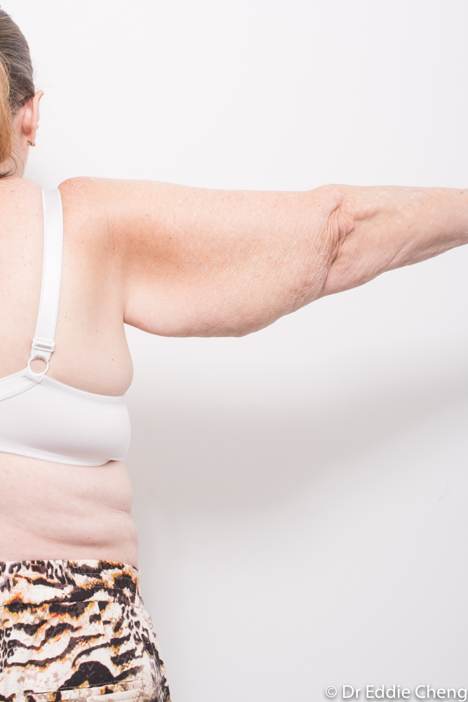arm lift dr eddie cheng brisbane (1 of 2)
