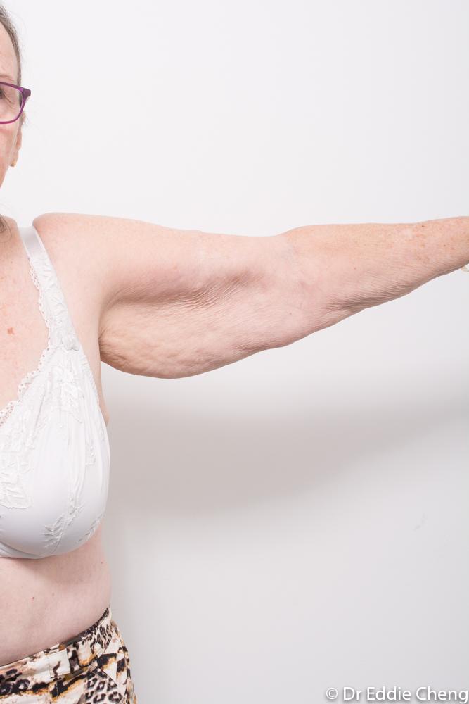 arm lift dr eddie cheng brisbane 2 (1 of 2)