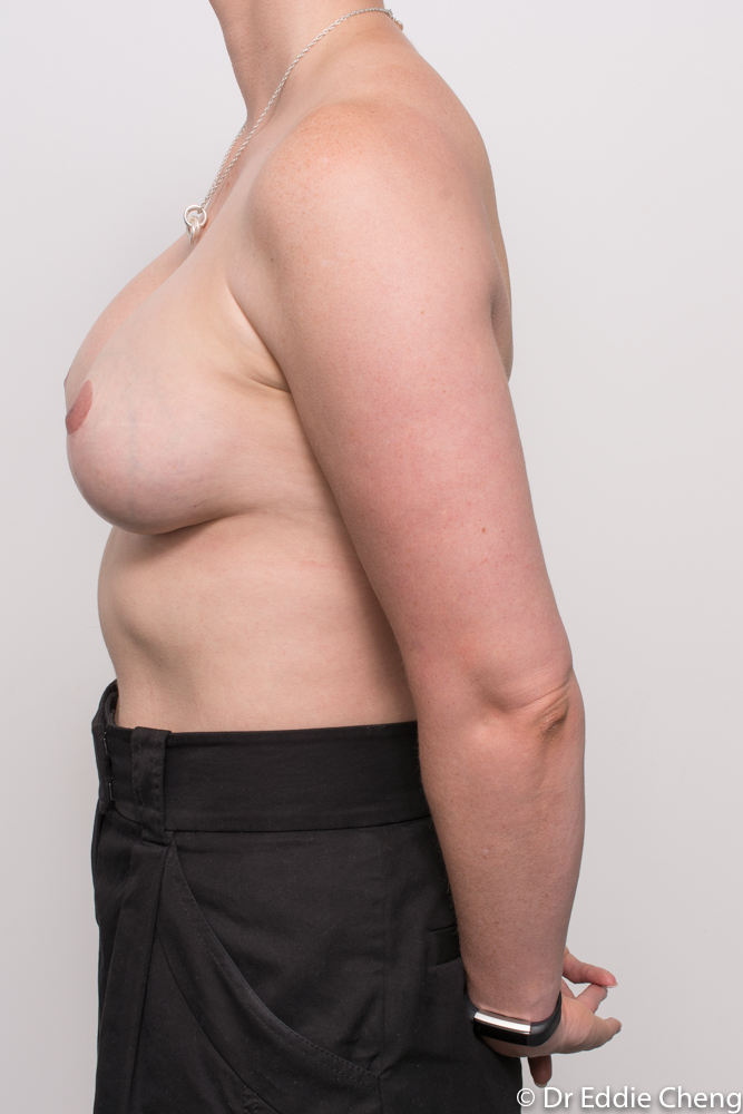 augmentation mastopexy dr eddie cheng brisbane breast implants and lift (10 of 10)