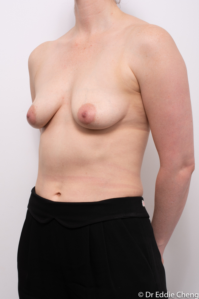 augmentation mastopexy dr eddie cheng brisbane breast implants and lift (4 of 10)