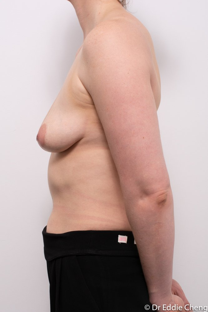 augmentation mastopexy dr eddie cheng brisbane breast implants and lift (5 of 10)