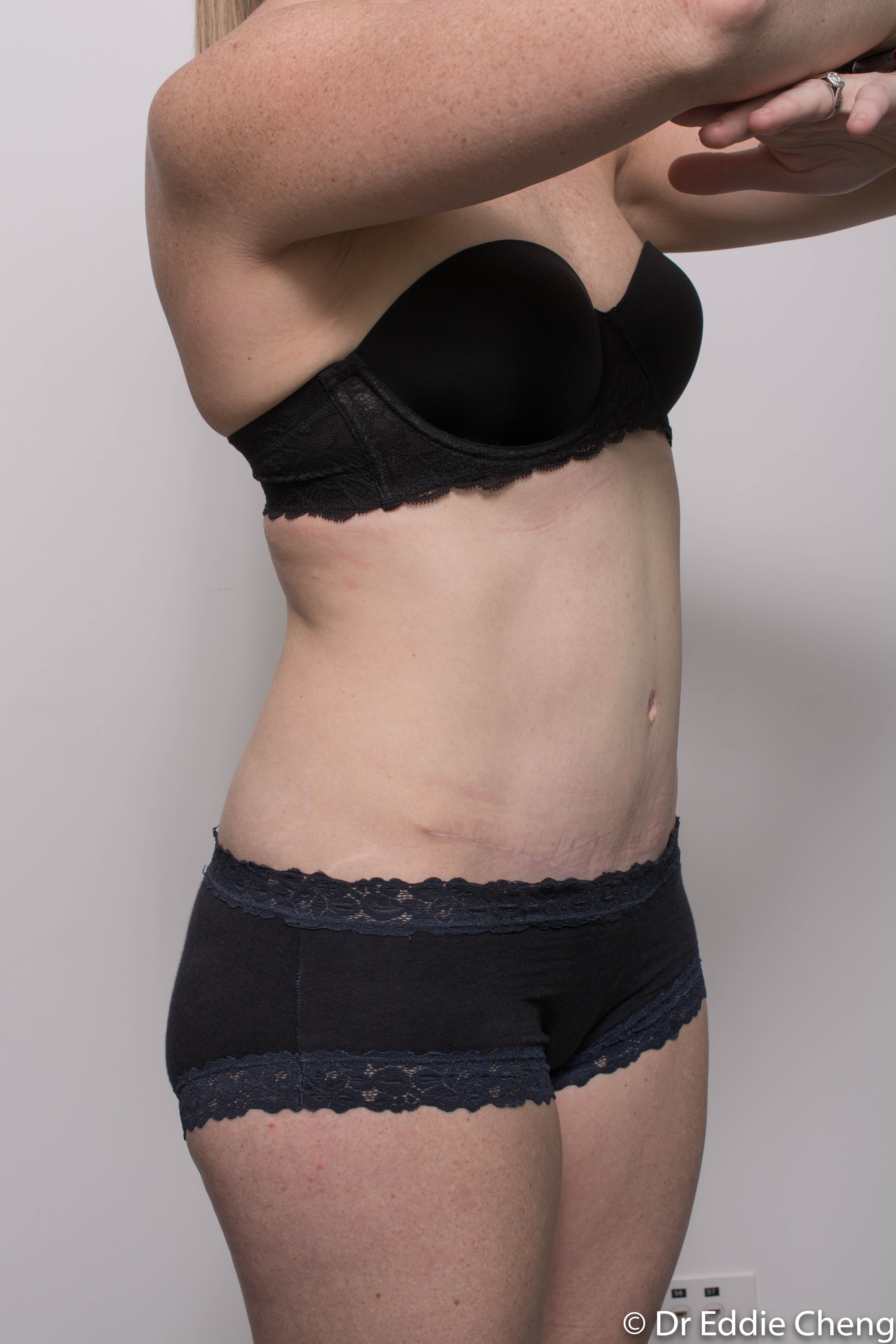 before and after abdominoplasty (5 of 8)