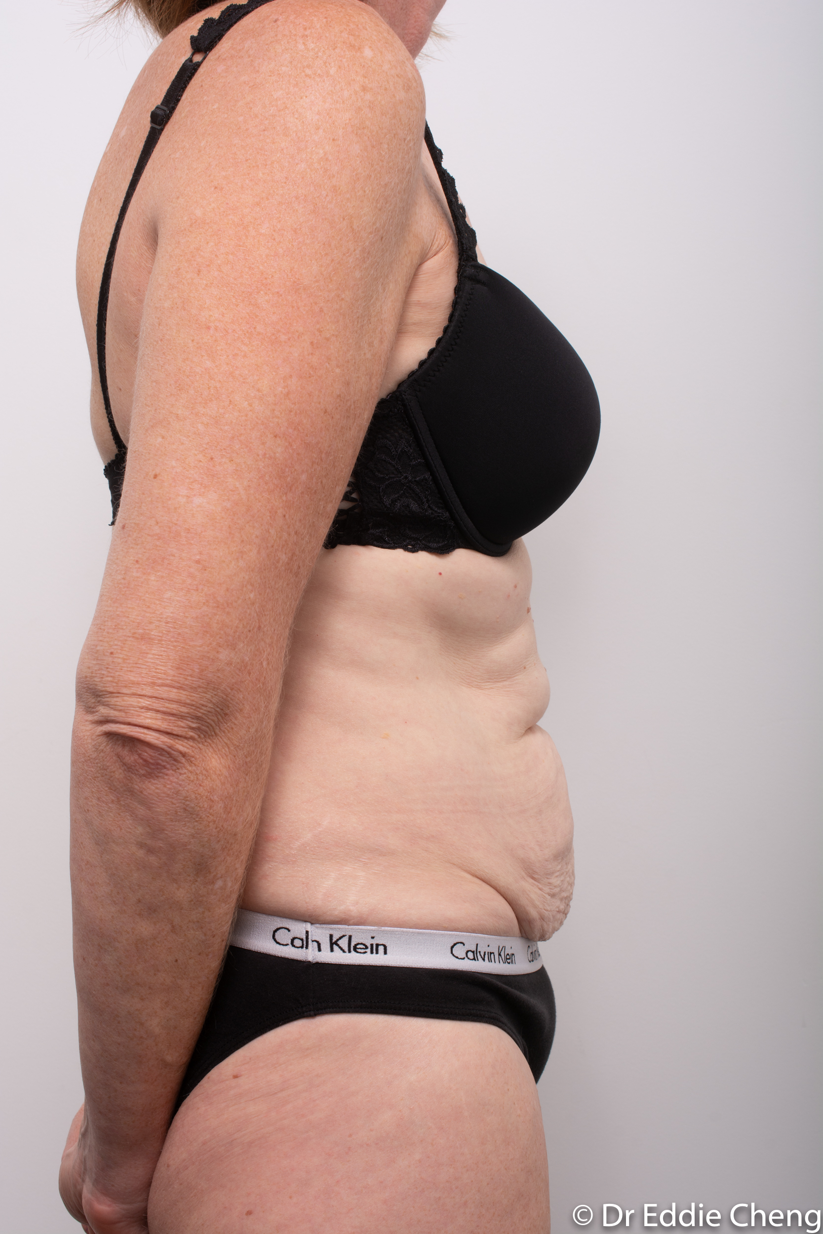 before and after abdominoplasty dr eddie cheng brisbane-1